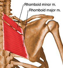 I've injured the rhomboid major...coughing of all things.